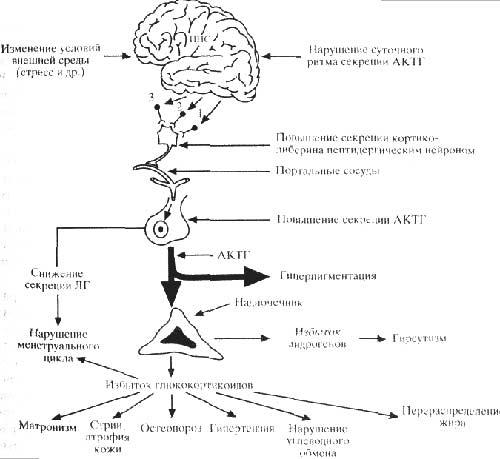 Схема патогенеза болезни