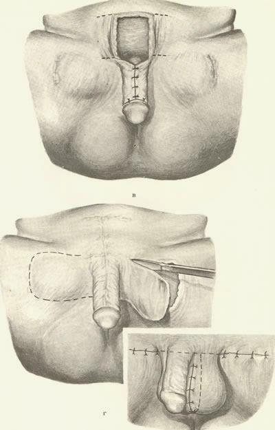 Побочные действие увеличение пениса